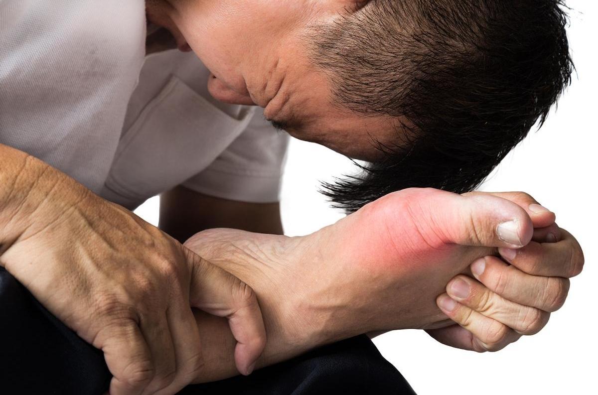 Comment soigner la goutte : comment la reconnaître ?